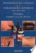 Manifestaciones cutáneas de las enfermedades sistémicas