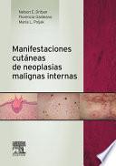 Manifestaciones cutáneas de neoplasias malignas internas