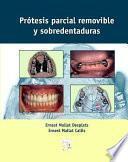 Prótesis parcial removible y sobredentaduras