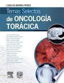 Temas selectos de oncología torácica