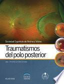 Traumatismos del polo posterior