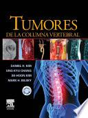 Tumores de la columna vertebral + CD-ROM
